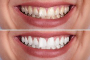 teeth whitening special deal in direct mail